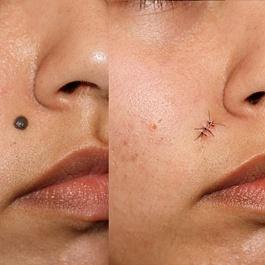 Удаление невуса хирургическим иссечением
